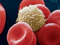 Как повысить лейкоциты в крови после курса химиотерапии? - Онкология