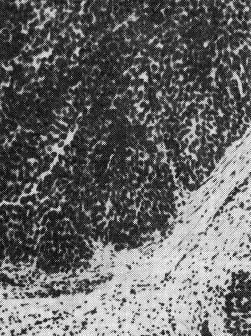 переходно- клеточные папилломы мочевого пузыря