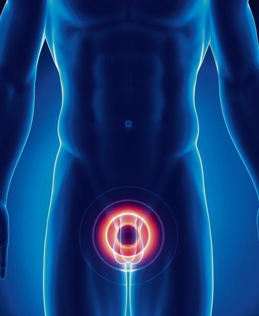 Причины заболевания простатита и аденомы