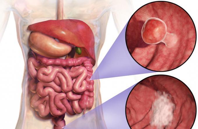 Выживаемость при раке кишечника