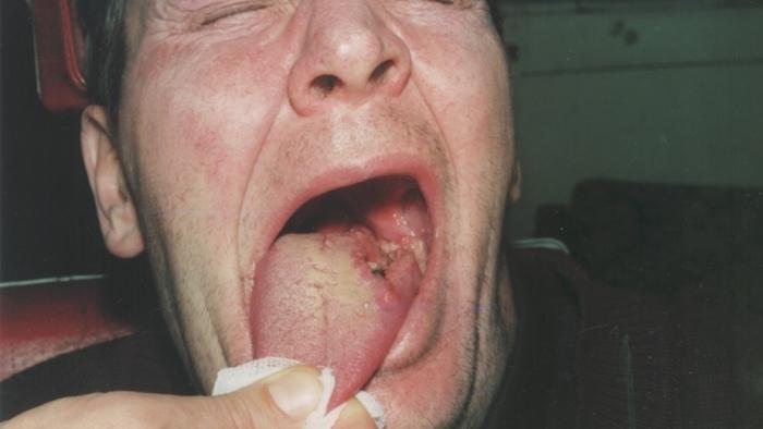 Как выглядит рак языка
