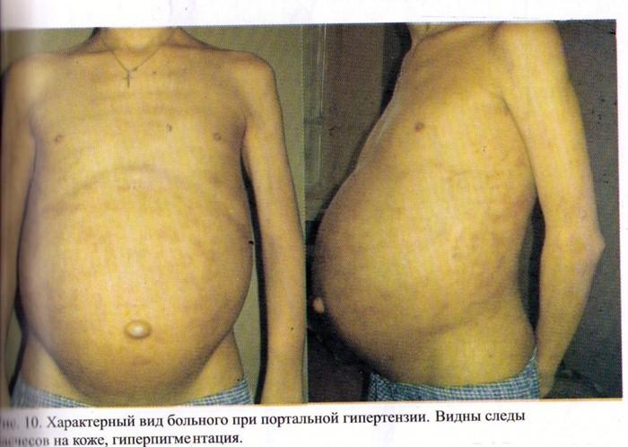 Кровоточивость десен при заболеваниях печени