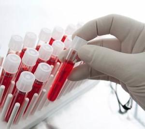 Общий анализ крови может показать рак
