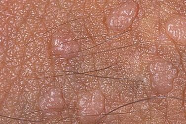 Кондилома на половых губах