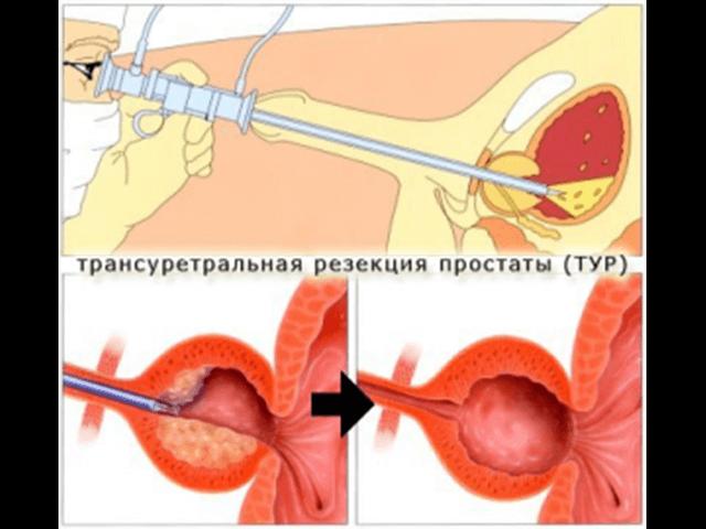 Последствия тур операции предстательной железы