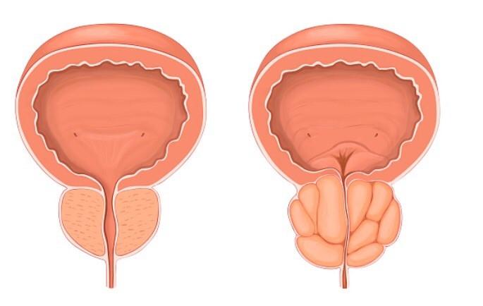Виды биопсии предстательной
