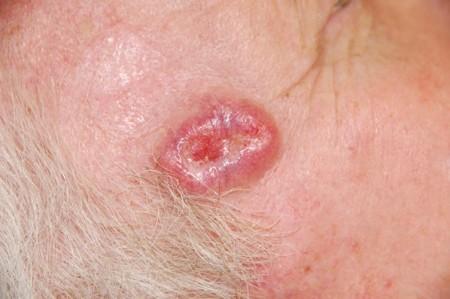 Рак кожи симптомы и признаки