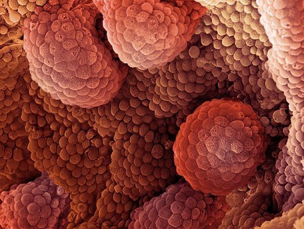 Рак предстательной железы 1 степени продолжительность жизни
