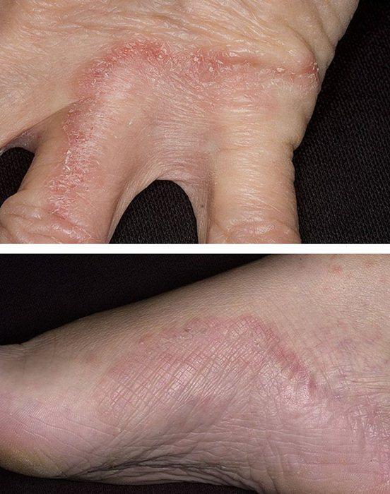 Как лечить дрожжевой грибок на коже
