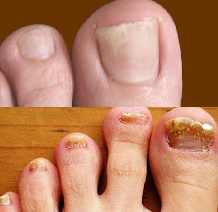 Как лечить запущенный грибок ногтей на руках