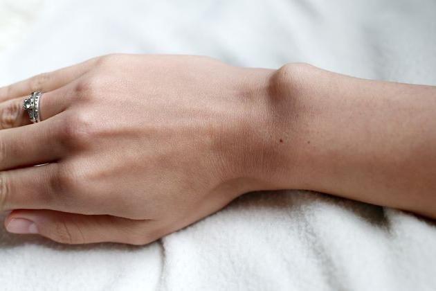 Лечение бородавок на пальцах рук в домашних условиях