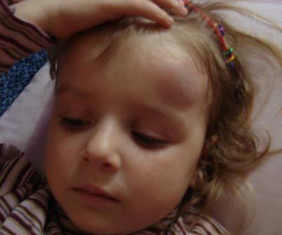 449Ребенок сильно ударился затылком об пол что делать