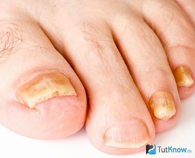 Фото грибок на ногтях ногах