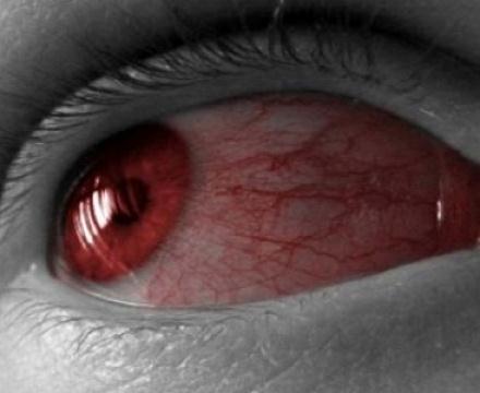 Что делать если глаз красный и не проходит
