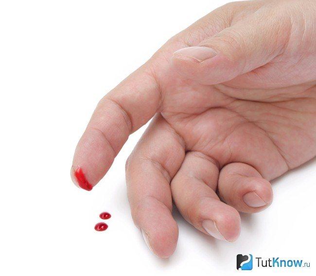 Гепатиты в и с пути передачи симптомы профилактика