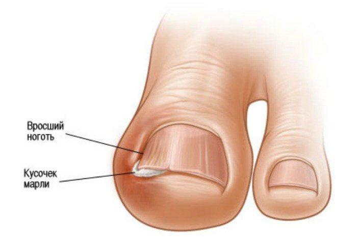 Вросший ноготь воспаление мазь