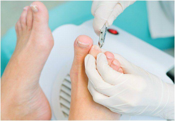 Чем лечить грибок на ногах промеж пальцев