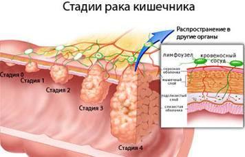 Как лечить опухоль желудка народными средствами