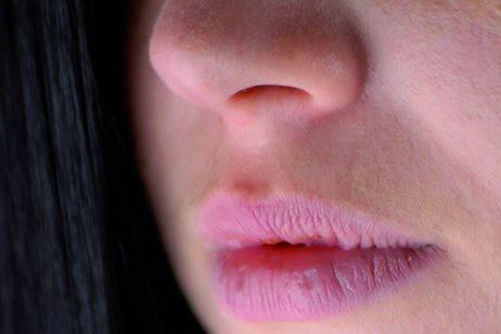 Почему губы трескаются и сохнут