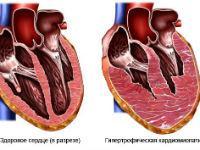 гипертрофическая кардиомиопатия у детей и взрослых