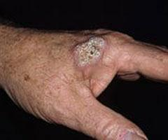 Як виглядає рак шкіри фото