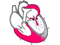 Недостаточность аортального клапана: степени, симптомы, причины и ...