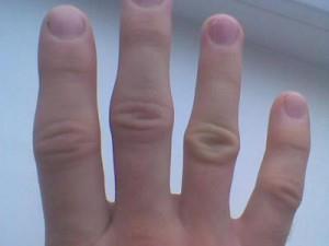 Опухают суставы на пальцах партерная гимнастика для позвоночника и суставов читать