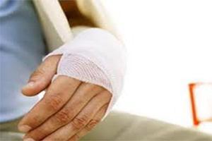 Перелом лучевой кости руки без смещения лечение срок сростания ...