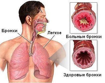 Причины мокроты с кровью утром, при простуде, бронхите, в мокроте ...