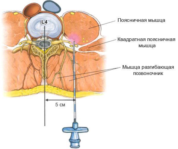Протрузии позвоночника остеохондроз лечение