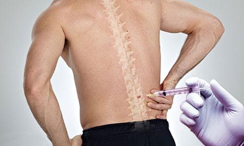 Доктор бубновский плечевой сустав видео