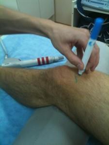 кровь в коленном суставе после операции
