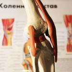 контрактура коленного сустава категория годности к службе