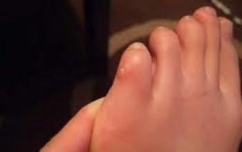 Шишка между пальцами ног