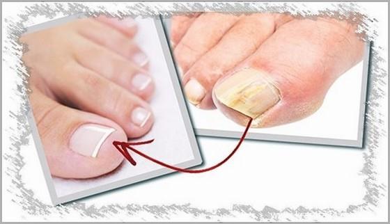 Способы лечения грибка ногтей рук