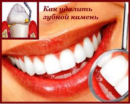 Как избавиться от зубного камня в домашних условиях - My Life