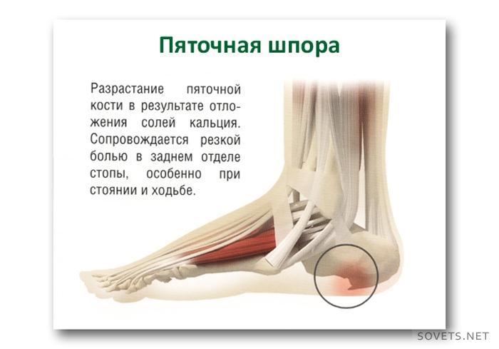 Как лечить стопу ноги в домашних условиях