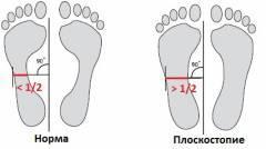 Освобождение от физкультуры при плоскостопии 3 степени Справка о гастроскопии Саларьево
